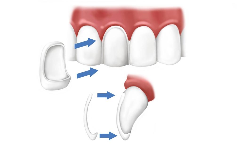 Porcelain Veneers Thunder Bay Dental Center Thunder Bay